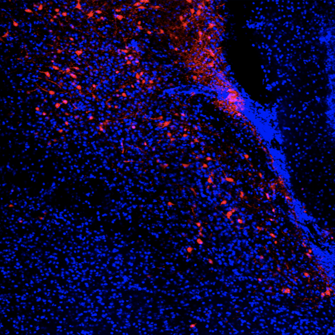 Olympus BX53 fluorescent microscope with UPlanSApo  20x, blue is DAPI, red is rabbit-RFP enhanced mCherry with AlexaFluor 555. Primary antibody: rockland rabbit anti-RFP 1:1000 Secondary antibody: alexafluor 555