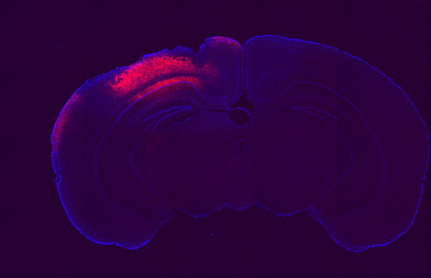 Zeiss Axioskop, 5x objective, red = mCherry, blue = DAPI