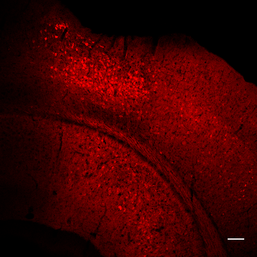 RCaMP expression (red) in the mouse primary visual cortex. Image taken with a confocal microscope, 20x objective. Scale bar = 100 μm
