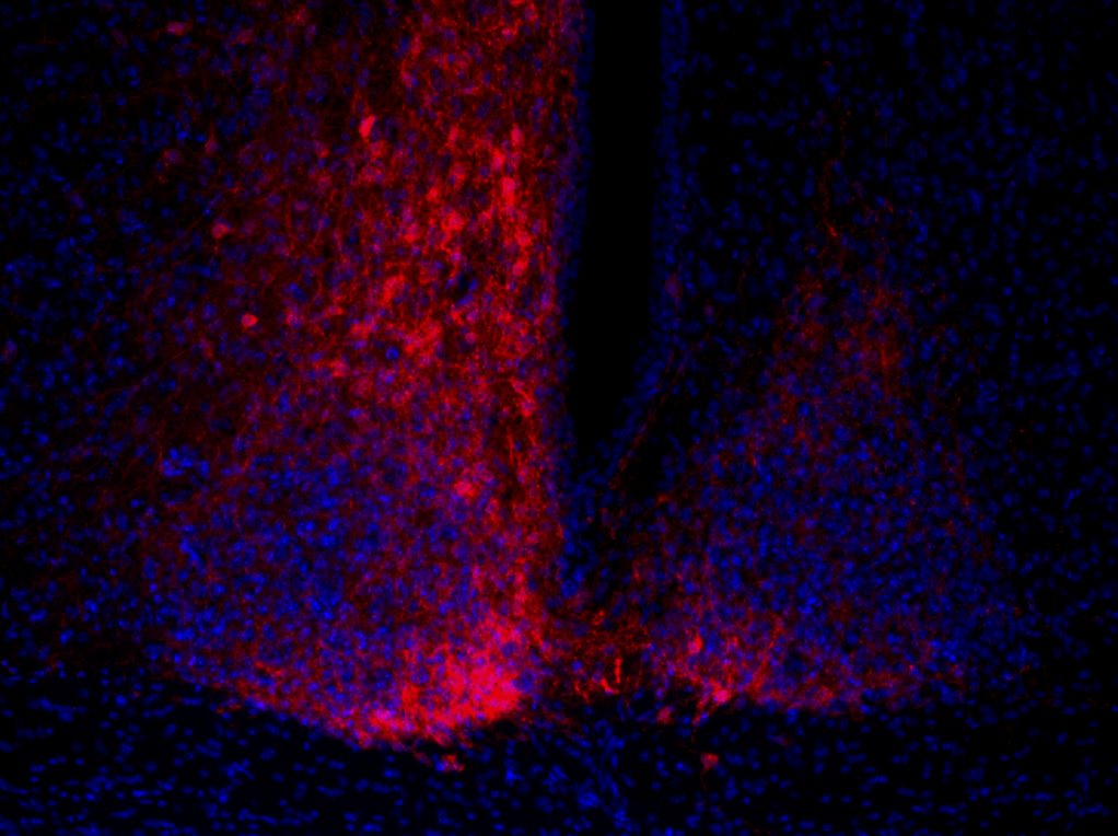 red: direct fluorescence for mCherry in the construct.  blue: DAPI