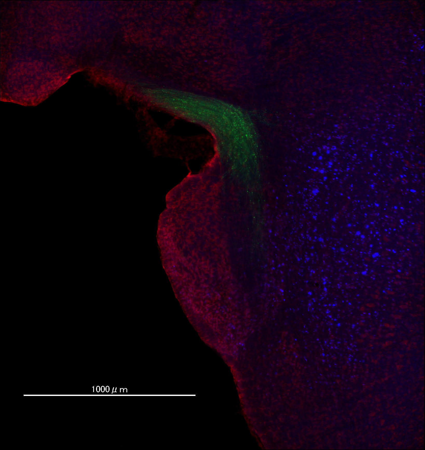 Pontine nucleus in brainstem of mouse. The image was acquired by All-in-one fluorescent microscope (BZ-X800, Keyence). Green: GCaMP6s axons from cortex, blue: native EBFP, red: fluorescent Nissle (NeuroTrace)