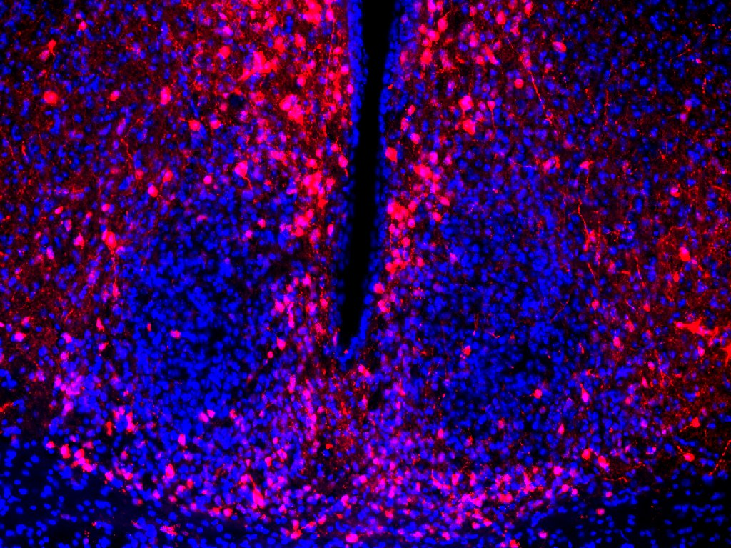 blue: DAPI.  red: mCherry (no staining).  10x objective