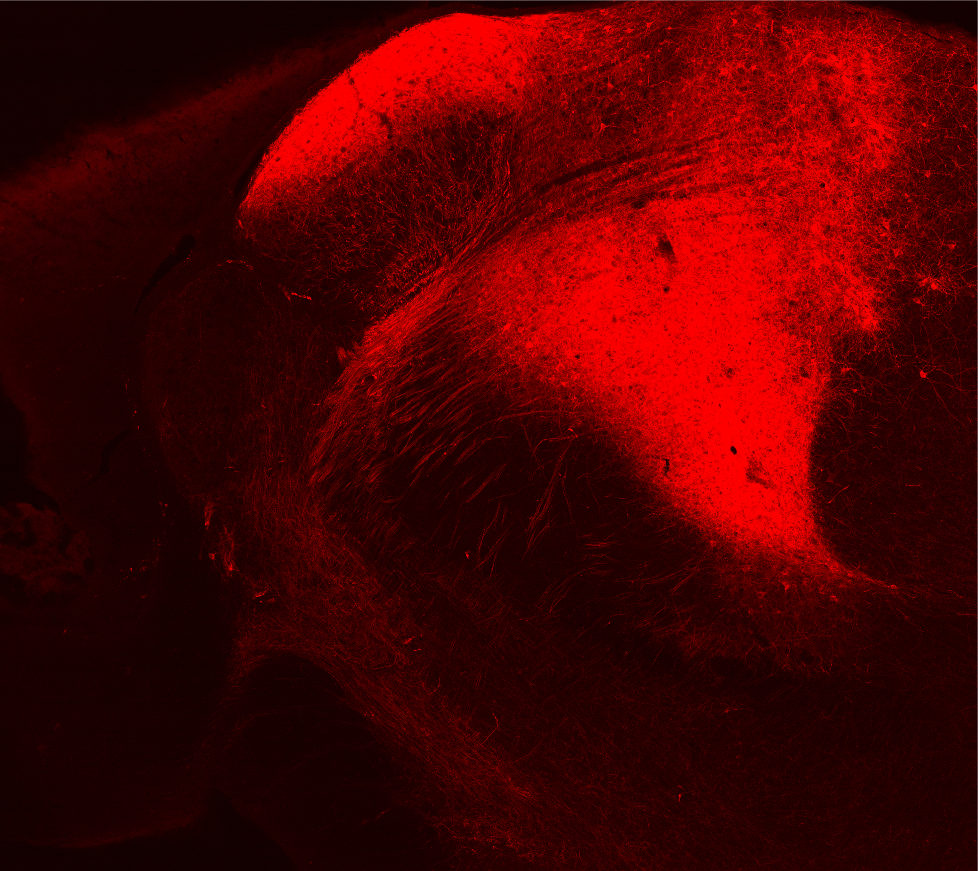 Confocal microscope image of striatal cell projections from posterior medial nucleus of the thalamus (POm)